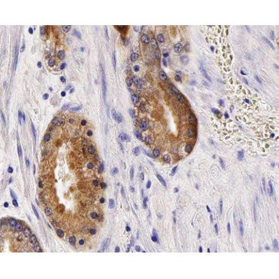 AF0648 staining MCF-7  cells by IF/ICC. The sample were fixed with PFA and permeabilized in 0.1% Triton X-100,then blocked in 10% serum for 45 minutes at 25¡ãC. The primary antibody was diluted at 1/200 and incubated with the sample for 1 hour at 37¡ãC. An  Alexa Fluor 594 conjugated goat anti-rabbit IgG (H+L) antibody(Cat.