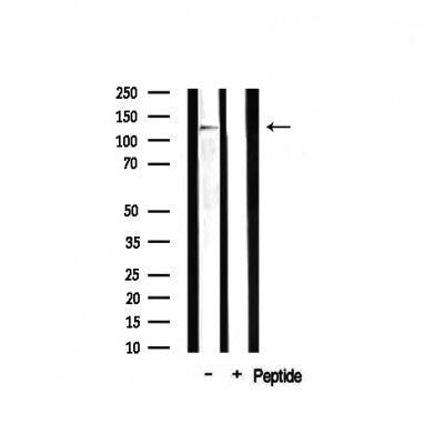 AF0571 staining Hela by IF/ICC. The sample were fixed with PFA and permeabilized in 0.1% Triton X-100,then blocked in 10% serum for 45 minutes at 25¡ãC. The primary antibody was diluted at 1/200 and incubated with the sample for 1 hour at 37¡ãC. An  Alexa Fluor 594 conjugated goat anti-rabbit IgG (H+L) Ab, diluted at 1/600, was used as the secondary antibod