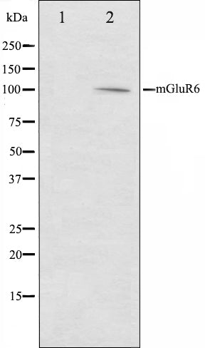 Western blot analysis on mouse brain cell lysate using mGluR6 Antibody,The lane on the left is treated with the antigen-specific peptide.