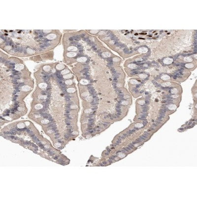 AF0170 at 1/100 staining human colon carcinoma tissue sections by IHC-P. The tissue was formaldehyde fixed and a heat mediated antigen retrieval step in citrate buffer was performed. The tissue was then blocked and incubated with the antibody for 1.5 hours at 22¡ãC. An HRP conjugated goat anti-rabbit antibody was used as the secondary