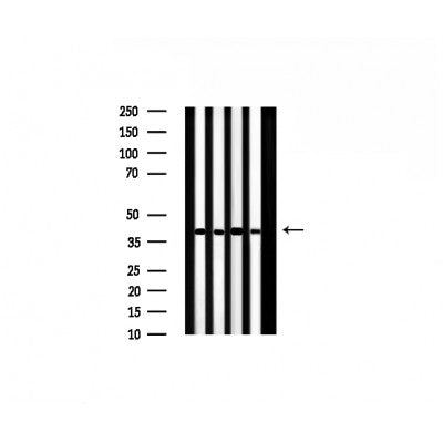 AF0526 staining Hela by IF/ICC. The sample were fixed with PFA and permeabilized in 0.1% Triton X-100,then blocked in 10% serum for 45 minutes at 25¡ãC. The primary antibody was diluted at 1/200 and incubated with the sample for 1 hour at 37¡ãC. An  Alexa Fluor 594 conjugated goat anti-rabbit IgG (H+L) Ab, diluted at 1/600, was used as the secondary antibod