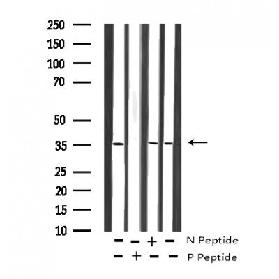 AF3274 staining COS7 by IF/ICC. The sample were fixed with PFA and permeabilized in 0.1% Triton X-100,then blocked in 10% serum for 45 minutes at 25¡ãC. The primary antibody was diluted at 1/200 and incubated with the sample for 1 hour at 37¡ãC. An  Alexa Fluor 594 conjugated goat anti-rabbit IgG (H+L) Ab, diluted at 1/600, was used as the secondary antibod
