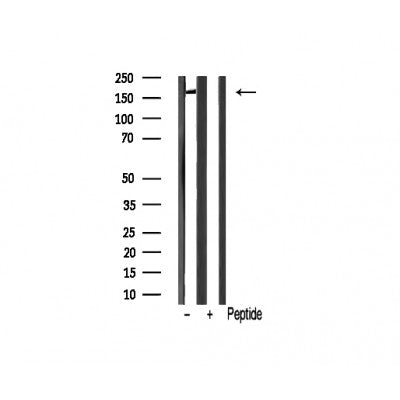 AF0564 staining HepG2 cells by IF/ICC. The sample were fixed with PFA and permeabilized in 0.1% Triton X-100,then blocked in 10% serum for 45 minutes at 25¡ãC. The primary antibody was diluted at 1/200 and incubated with the sample for 1 hour at 37¡ãC. An  Alexa Fluor 594 conjugated goat anti-rabbit IgG (H+L) antibody(Cat.# S0006), diluted at 1/600, was used as secondary antibod