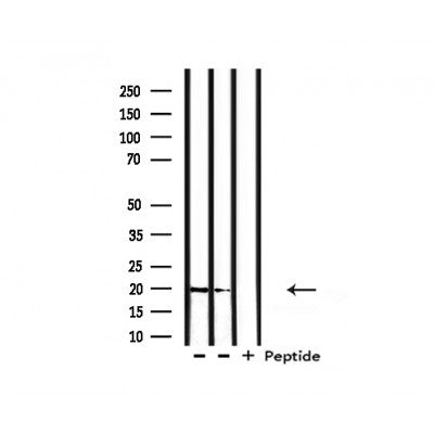 Western blot analysis of extracts from rat liver, rat brain, using hCG beta Antibody.
