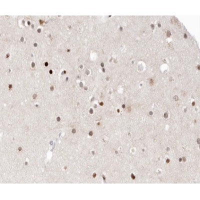 AF0181 at 1/100 staining human brain tissue sections by IHC-P. The tissue was formaldehyde fixed and a heat mediated antigen retrieval step in citrate buffer was performed. The tissue was then blocked and incubated with the antibody for 1.5 hours at 22¡ãC. An HRP conjugated goat anti-rabbit antibody was used as the secondary