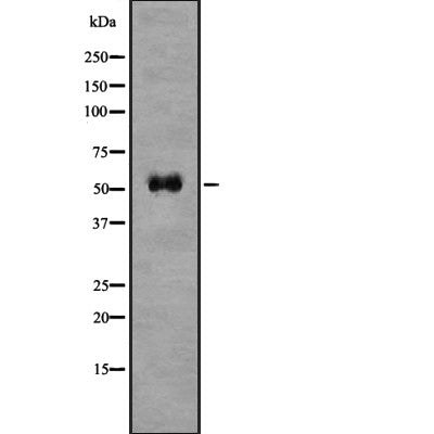 Western blot analysis of BACE1 using COLO205 whole  lysates.