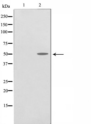 AF0827 staining A-431 cells by IF/ICC. The sample were fixed with PFA and permeabilized in 0.1% Triton X-100,then blocked in 10% serum for 45 minutes at 25¡ãC. The primary antibody was diluted at 1/200 and incubated with the sample for 1 hour at 37¡ãC. An  Alexa Fluor 594 conjugated goat anti-rabbit IgG (H+L) antibody(Cat.