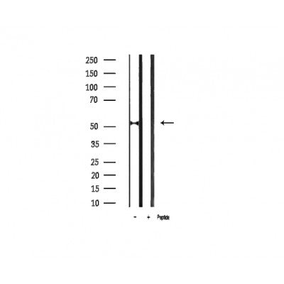 AF3073 staining MDA-MB-435 by IF/ICC. The sample were fixed with PFA and permeabilized in 0.1% Triton X-100,then blocked in 10% serum for 45 minutes at 25¡ãC. The primary antibody was diluted at 1/200 and incubated with the sample for 1 hour at 37¡ãC. An  Alexa Fluor 594 conjugated goat anti-rabbit IgG (H+L) Ab, diluted at 1/600, was used as the secondary antibod