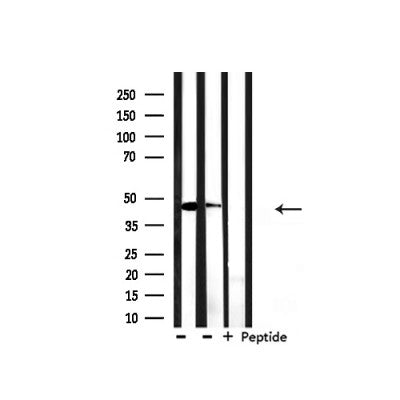 Western blot analysis of extracts from HepG2, mouse spleen , using Keratin 18 Antibody.