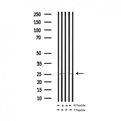 AF3110 staining NIH-3T3 by IF/ICC. The sample were fixed with PFA and permeabilized in 0.1% Triton X-100,then blocked in 10% serum for 45 minutes at 25¡ãC. The primary antibody was diluted at 1/200 and incubated with the sample for 1 hour at 37¡ãC. An  Alexa Fluor 594 conjugated goat anti-rabbit IgG (H+L) Ab, diluted at 1/600, was used as the secondary antibod