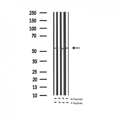 AF3115 staining 293 by IF/ICC. The sample were fixed with PFA and permeabilized in 0.1% Triton X-100,then blocked in 10% serum for 45 minutes at 25¡ãC. The primary antibody was diluted at 1/200 and incubated with the sample for 1 hour at 37¡ãC. An  Alexa Fluor 594 conjugated goat anti-rabbit IgG (H+L) Ab, diluted at 1/600, was used as the secondary antibod