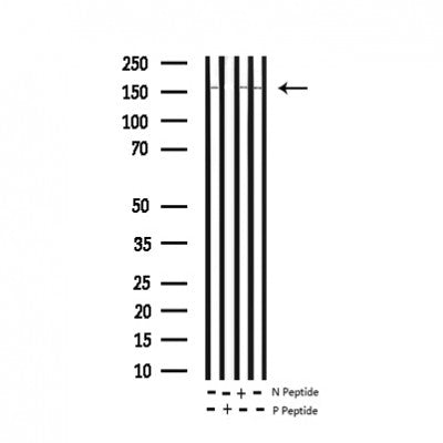 Western blot analysis of extracts from ret transfected 293 cells lysates, using Phospho-Ret (Tyr1062) Antibody.