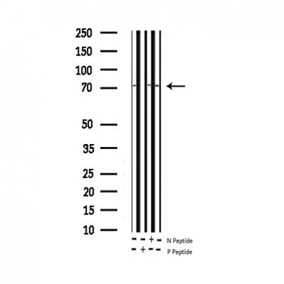 AF3143 staining HepG2 by IF/ICC. The sample were fixed with PFA and permeabilized in 0.1% Triton X-100,then blocked in 10% serum for 45 minutes at 25¡ãC. The primary antibody was diluted at 1/200 and incubated with the sample for 1 hour at 37¡ãC. An  Alexa Fluor 594 conjugated goat anti-rabbit IgG (H+L) Ab, diluted at 1/600, was used as the secondary antibod