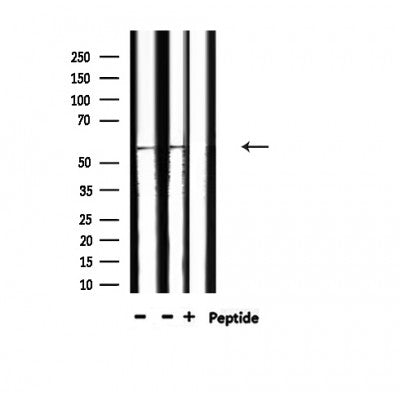 AF3161 staining 293 by IF/ICC. The sample were fixed with PFA and permeabilized in 0.1% Triton X-100,then blocked in 10% serum for 45 minutes at 25¡ãC. The primary antibody was diluted at 1/200 and incubated with the sample for 1 hour at 37¡ãC. An  Alexa Fluor 594 conjugated goat anti-rabbit IgG (H+L) Ab, diluted at 1/600, was used as the secondary antibod