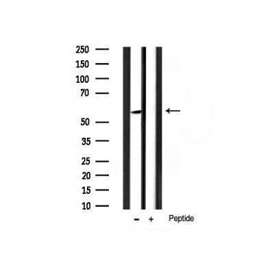 AF3260 staining 293 by IF/ICC. The sample were fixed with PFA and permeabilized in 0.1% Triton X-100,then blocked in 10% serum for 45 minutes at 25¡ãC. The primary antibody was diluted at 1/200 and incubated with the sample for 1 hour at 37¡ãC. An  Alexa Fluor 594 conjugated goat anti-rabbit IgG (H+L) Ab, diluted at 1/600, was used as the secondary antibod