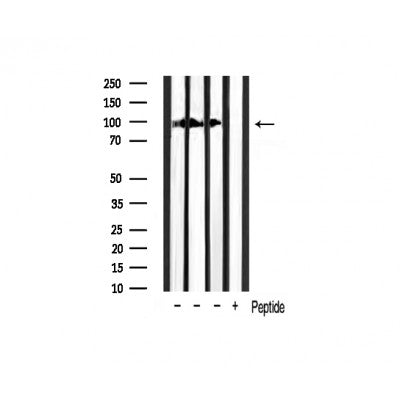 AF3266 staining SW626 by IF/ICC. The sample were fixed with PFA and permeabilized in 0.1% Triton X-100,then blocked in 10% serum for 45 minutes at 25¡ãC. The primary antibody was diluted at 1/200 and incubated with the sample for 1 hour at 37¡ãC. An  Alexa Fluor 594 conjugated goat anti-rabbit IgG (H+L) Ab, diluted at 1/600, was used as the secondary antibod