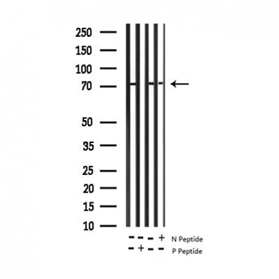 AF3276 staining HeLa by IF/ICC. The sample were fixed with PFA and permeabilized in 0.1% Triton X-100,then blocked in 10% serum for 45 minutes at 25¡ãC. The primary antibody was diluted at 1/200 and incubated with the sample for 1 hour at 37¡ãC. An  Alexa Fluor 594 conjugated goat anti-rabbit IgG (H+L) Ab, diluted at 1/600, was used as the secondary antibod