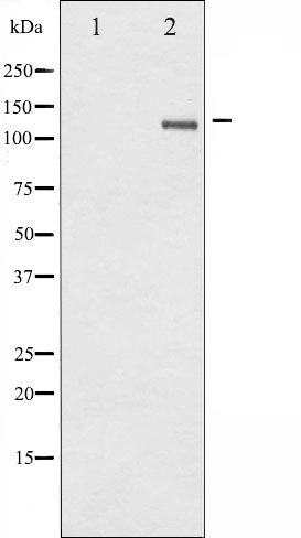 AF3283 at 1/100 staining Mouse lung tissue by IHC-P. The sample was formaldehyde fixed and a heat mediated antigen retrieval step in citrate buffer was performed. The sample was then blocked and incubated with the antibody for 1.5 hours at 22¡ãC. An HRP conjugated goat anti-rabbit antibody was used as the secondary