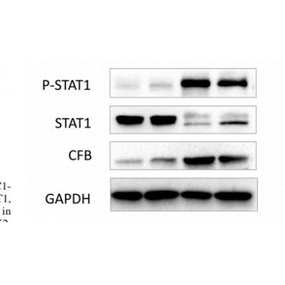 AF3299 staining MCF7 by IF/ICC. The sample were fixed with PFA and permeabilized in 0.1% Triton X-100,then blocked in 10% serum for 45 minutes at 25¡ãC. The primary antibody was diluted at 1/200 and incubated with the sample for 1 hour at 37¡ãC. An  Alexa Fluor 594 conjugated goat anti-rabbit IgG (H+L) Ab, diluted at 1/600, was used as the secondary antibod