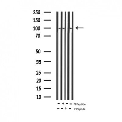 AF3302 staining HeLa by IF/ICC. The sample were fixed with PFA and permeabilized in 0.1% Triton X-100,then blocked in 10% serum for 45 minutes at 25¡ãC. The primary antibody was diluted at 1/200 and incubated with the sample for 1 hour at 37¡ãC. An  Alexa Fluor 594 conjugated goat anti-rabbit IgG (H+L) Ab, diluted at 1/600, was used as the secondary antibod