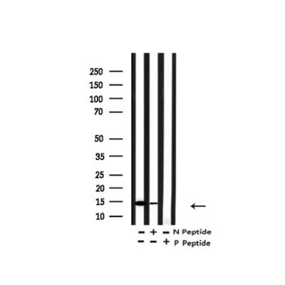 Western blot analysis of Acetyl-H2A.Z ( K4/7/11/13) in lysates of HeLa  TSA 1M, 18 hr, using Acetyl-H2A.Z ( K4/7/11/13) Antibody(AF4366).