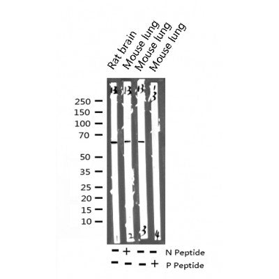Western blot analysis of Phospho-Paxillin (Tyr118) expression in various lysates