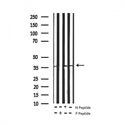 Western blot analysis of Phospho-EFNB1/2 (Tyr330) expression in various lysates