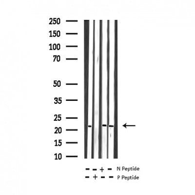 Western blot analysis of Phospho-RhoA (Ser188) expression in various lysates