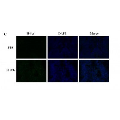AF3355 staining Hela by IF/ICC. The sample were fixed with PFA and permeabilized in 0.1% Triton X-100,then blocked in 10% serum for 45 minutes at 25¡ãC. The primary antibody was diluted at 1/200 and incubated with the sample for 1 hour at 37¡ãC. An  Alexa Fluor 594 conjugated goat anti-rabbit IgG (H+L) Ab, diluted at 1/600, was used as the secondary antibod