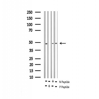 AF3377 staining HeLa by IF/ICC. The sample were fixed with PFA and permeabilized in 0.1% Triton X-100,then blocked in 10% serum for 45 minutes at 25¡ãC. The primary antibody was diluted at 1/200 and incubated with the sample for 1 hour at 37¡ãC. An  Alexa Fluor 594 conjugated goat anti-rabbit IgG (H+L) Ab, diluted at 1/600, was used as the secondary antibod