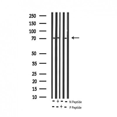 AF3380 staining HepG2 by IF/ICC. The sample were fixed with PFA and permeabilized in 0.1% Triton X-100,then blocked in 10% serum for 45 minutes at 25¡ãC. The primary antibody was diluted at 1/200 and incubated with the sample for 1 hour at 37¡ãC. An  Alexa Fluor 594 conjugated goat anti-rabbit IgG (H+L) Ab, diluted at 1/600, was used as the secondary antibod