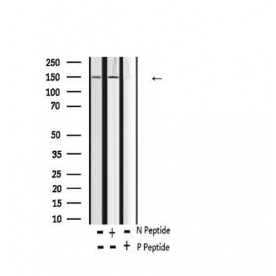 AF2342 at 1/100 staining Human thyroid cancer tissue by IHC-P. The sample was formaldehyde fixed and a heat mediated antigen retrieval step in citrate buffer was performed. The sample was then blocked and incubated with the antibody for 1.5 hours at 22¡ãC. An HRP conjugated goat anti-rabbit antibody was used as the secondary