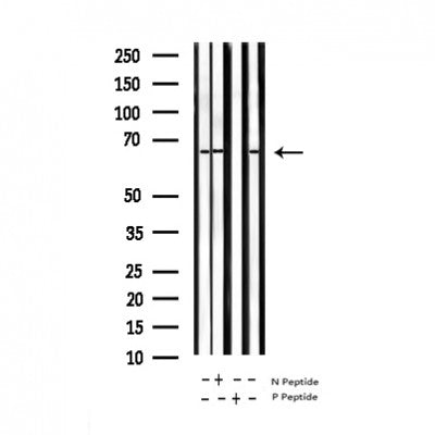 AF3393 staining HeLa by IF/ICC. The sample were fixed with PFA and permeabilized in 0.1% Triton X-100,then blocked in 10% serum for 45 minutes at 25¡ãC. The primary antibody was diluted at 1/200 and incubated with the sample for 1 hour at 37¡ãC. An  Alexa Fluor 594 conjugated goat anti-rabbit IgG (H+L) Ab, diluted at 1/600, was used as the secondary antibod