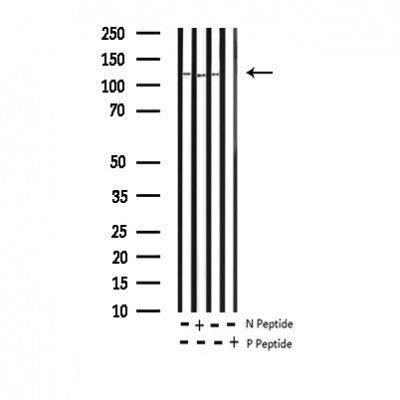 AF3398 staining HepG2 by IF/ICC. The sample were fixed with PFA and permeabilized in 0.1% Triton X-100,then blocked in 10% serum for 45 minutes at 25¡ãC. The primary antibody was diluted at 1/200 and incubated with the sample for 1 hour at 37¡ãC. An  Alexa Fluor 594 conjugated goat anti-rabbit IgG (H+L) Ab, diluted at 1/600, was used as the secondary antibod