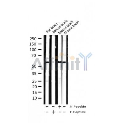 Western blot analysis of extracts from rat brain, mouse muscle, using Phospho-Smad2 (Ser467) Antibody.