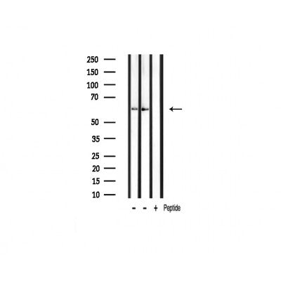 AF3422 staining HT29 by IF/ICC. The sample were fixed with PFA and permeabilized in 0.1% Triton X-100,then blocked in 10% serum for 45 minutes at 25¡ãC. The primary antibody was diluted at 1/200 and incubated with the sample for 1 hour at 37¡ãC. An  Alexa Fluor 594 conjugated goat anti-rabbit IgG (H+L) Ab, diluted at 1/600, was used as the secondary antibod