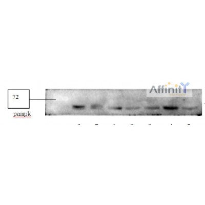 AF3423 staining 293 by IF/ICC. The sample were fixed with PFA and permeabilized in 0.1% Triton X-100,then blocked in 10% serum for 45 minutes at 25¡ãC. The primary antibody was diluted at 1/200 and incubated with the sample for 1 hour at 37¡ãC. An  Alexa Fluor 594 conjugated goat anti-rabbit IgG (H+L) Ab, diluted at 1/600, was used as the secondary antibod