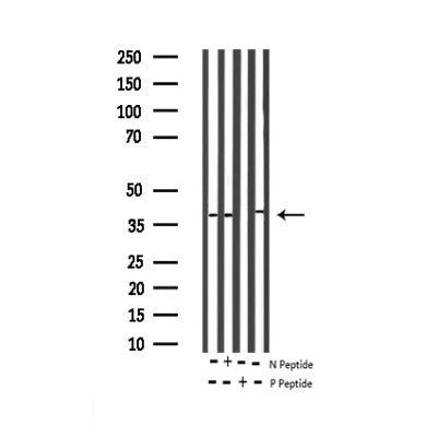 AF3457 staining Hela by IF/ICC. The sample were fixed with PFA and permeabilized in 0.1% Triton X-100,then blocked in 10% serum for 45 minutes at 25¡ãC. The primary antibody was diluted at 1/200 and incubated with the sample for 1 hour at 37¡ãC. An  Alexa Fluor 594 conjugated goat anti-rabbit IgG (H+L) Ab, diluted at 1/600, was used as the secondary antibod
