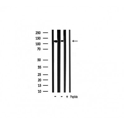 Western blot analysis of SHIP1 expression in various lysates