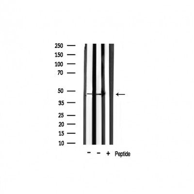 Western blot analysis of extracts of various tissue ,using Thrombin Receptor antibody.