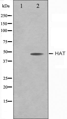 Western blot analysis on LOVO cell lysate using HAT Antibody,The lane on the left is treated with the antigen-specific peptide.