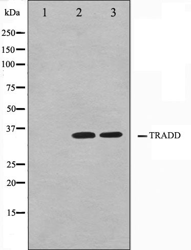 Western blot analysis on COS7 and HuvEc cell lysate using TRADD Antibody.The lane on the left is treated with the antigen-specific peptide.