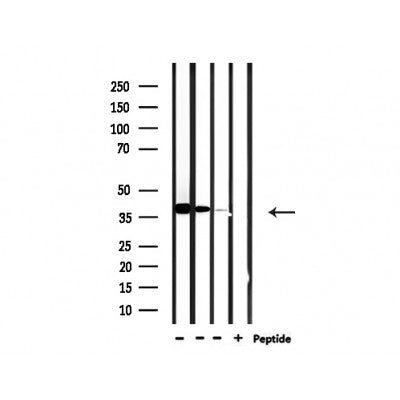 Western blot analysis of extracts from 293 and hela and rat brain, using USF2 Antibody.