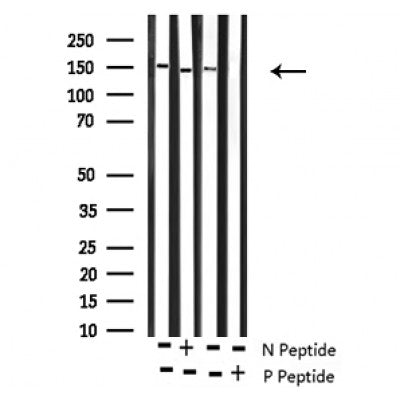 Western blot analysis of Phospho-ROCK2 (Tyr722) antibody expression in Rat brain and mouse lung tissues lysates.