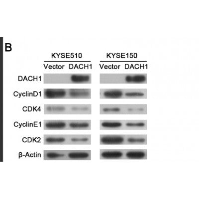 Western blot analysis of extracts from HUVEC cells using CDK4 Antibody
