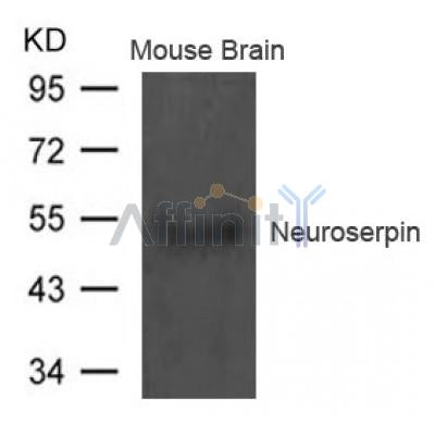 Western blot analysis of extract from Mouse brain tissue using Neuroserpin Antibody