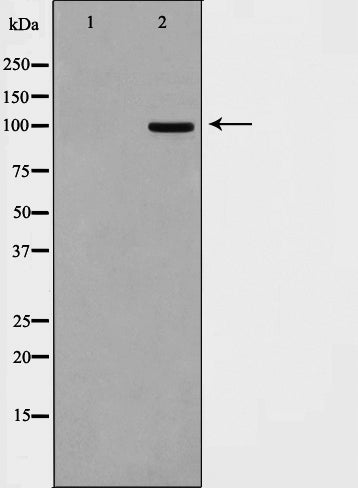 Western blot analysis on HepG2 cell lysate using DLGP1 Antibody.The lane on the left is treated with the antigen-specific peptide.
