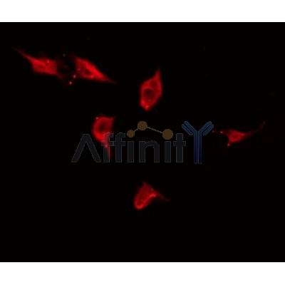 AF0310 staining HuvEc by IF/ICC. The sample were fixed with PFA and permeabilized in 0.1% Triton X-100,then blocked in 10% serum for 45 minutes at 25¡ãC. The primary antibody was diluted at 1/200 and incubated with the sample for 1 hour at 37¡ãC. An  Alexa Fluor 594 conjugated goat anti-rabbit IgG (H+L) Ab, diluted at 1/600, was used as the secondary antibod