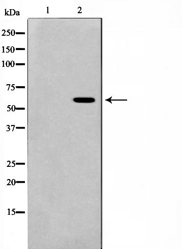 Western blot analysis on HeLa cell lysate using AIRE Antibody,The lane on the left is treated with the antigen-specific peptide.