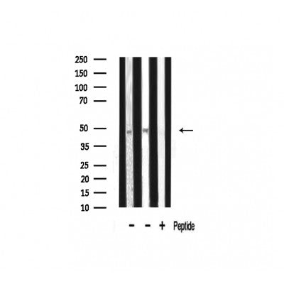 Western blot analysis of ADA2L expression in various lysates